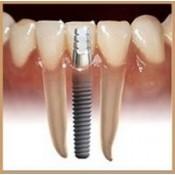 Γενετική και Oδοντιατρική