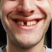 Απώλεια δοντιών και εγκεφαλικό